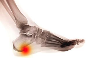 Symptoms of Heel Spurs